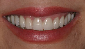 Dental Reconstructive Surgery