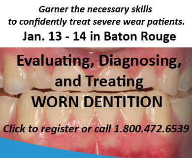 Evaluating Worn Dentition